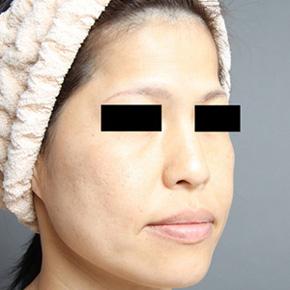 頬 脂肪注入 たるみ改善 画像