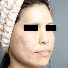 顔 脂肪注入 頬のたるみ 改善 画像