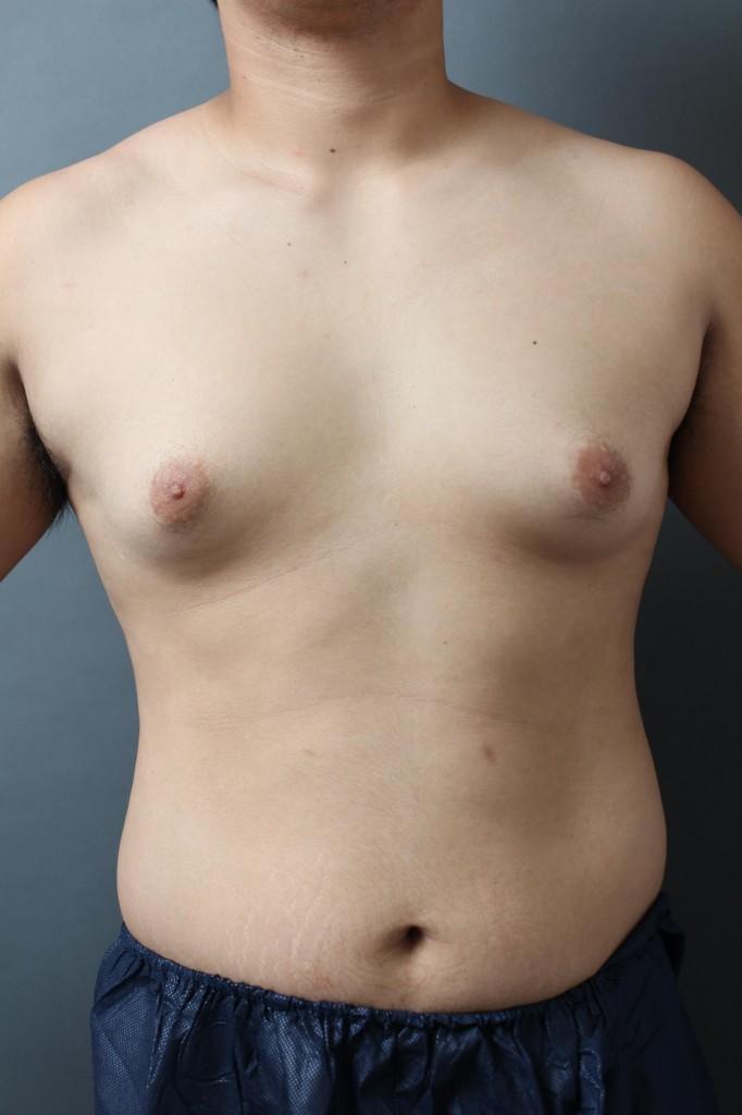 女性化乳房 胸 男性 乳腺 画像