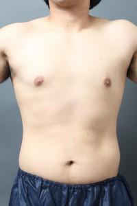 女性化乳房 胸 男性 真性 写真