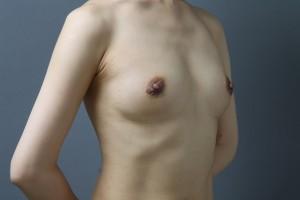 豊胸手術 コンデンスリッチ豊胸 バッグ除去 画像
