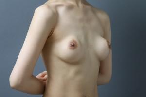 豊胸手術 シリコンバッグ 拘縮 画像