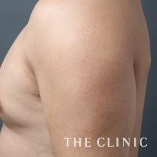 脂肪吸引 男性 二の腕 4D 画像