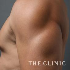 ベイザー4D 脂肪吸引 男性 二の腕 画像