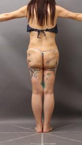 脂肪吸引 失敗 修正 太もも 画像