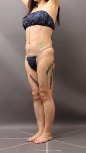 脂肪吸引 失敗 修正 カウンセリング 画像