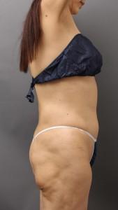 脂肪吸引 失敗 でこぼこ 画像