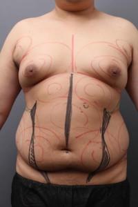 ベイザー4D 脂肪吸引