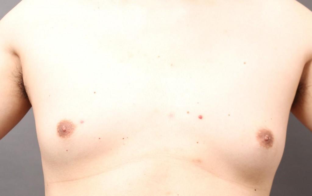 女性化乳房 傷跡