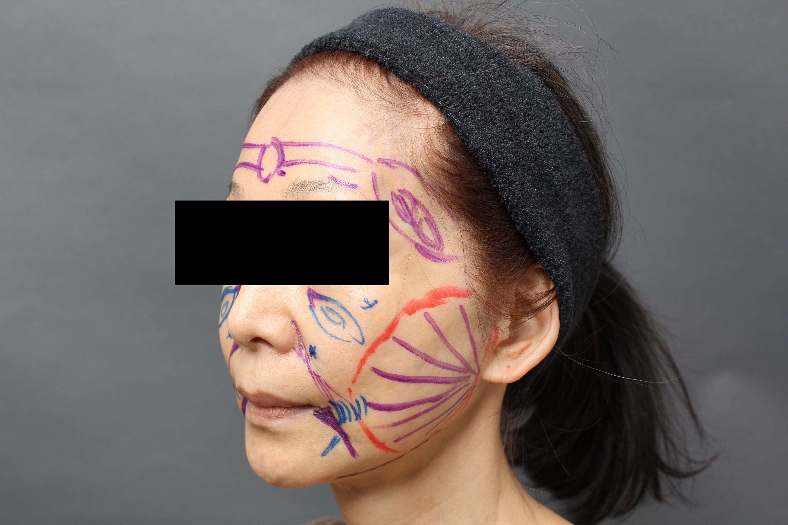若い時の立体的な顔に:サーミタイトで頬の引き締め+3Dセルリフト+CRFフェイス
