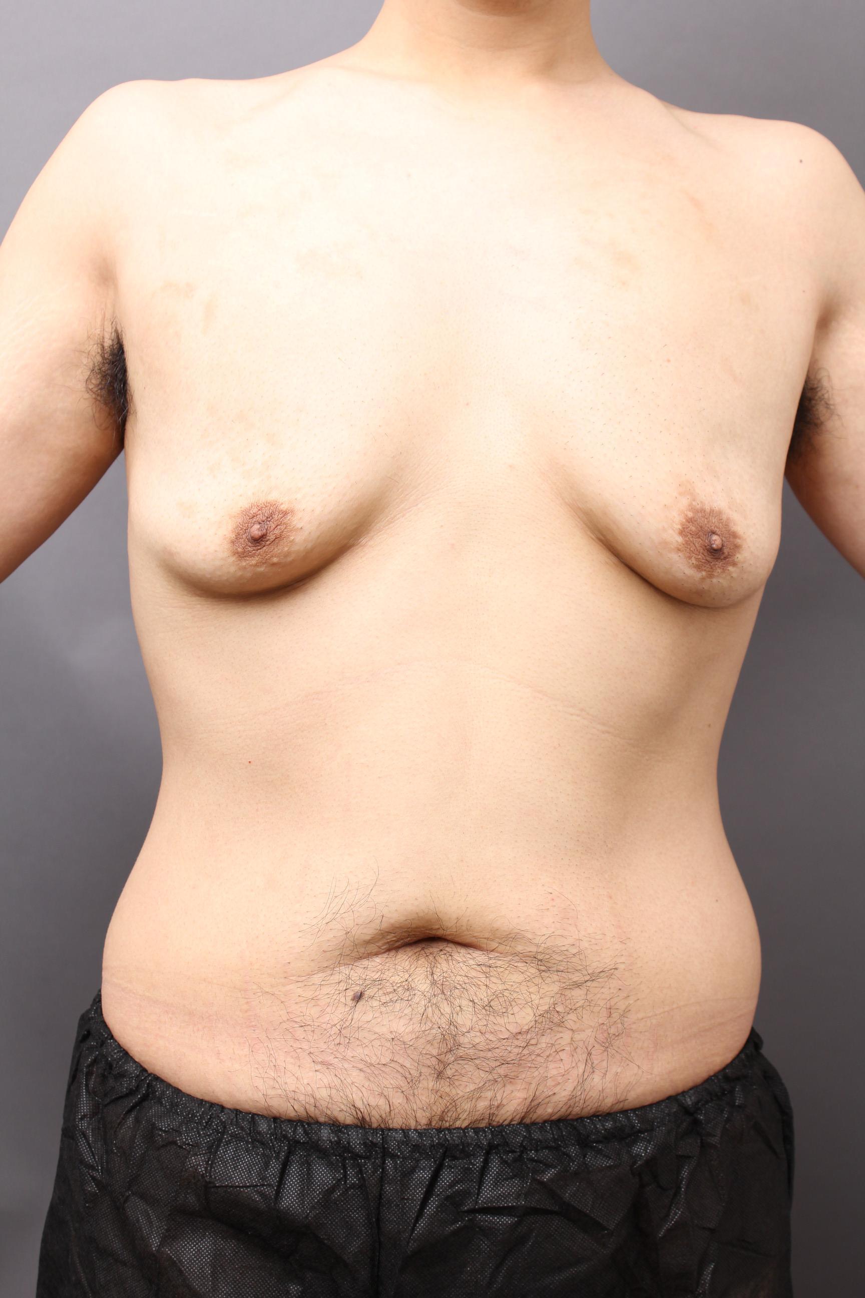 女性化乳房:VASER+乳腺切除+サーミタイト術後