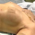 他院脂肪注入後しこり除去 crf豊胸