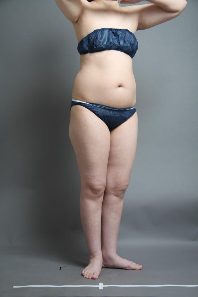 vaser脂肪吸引 腹部