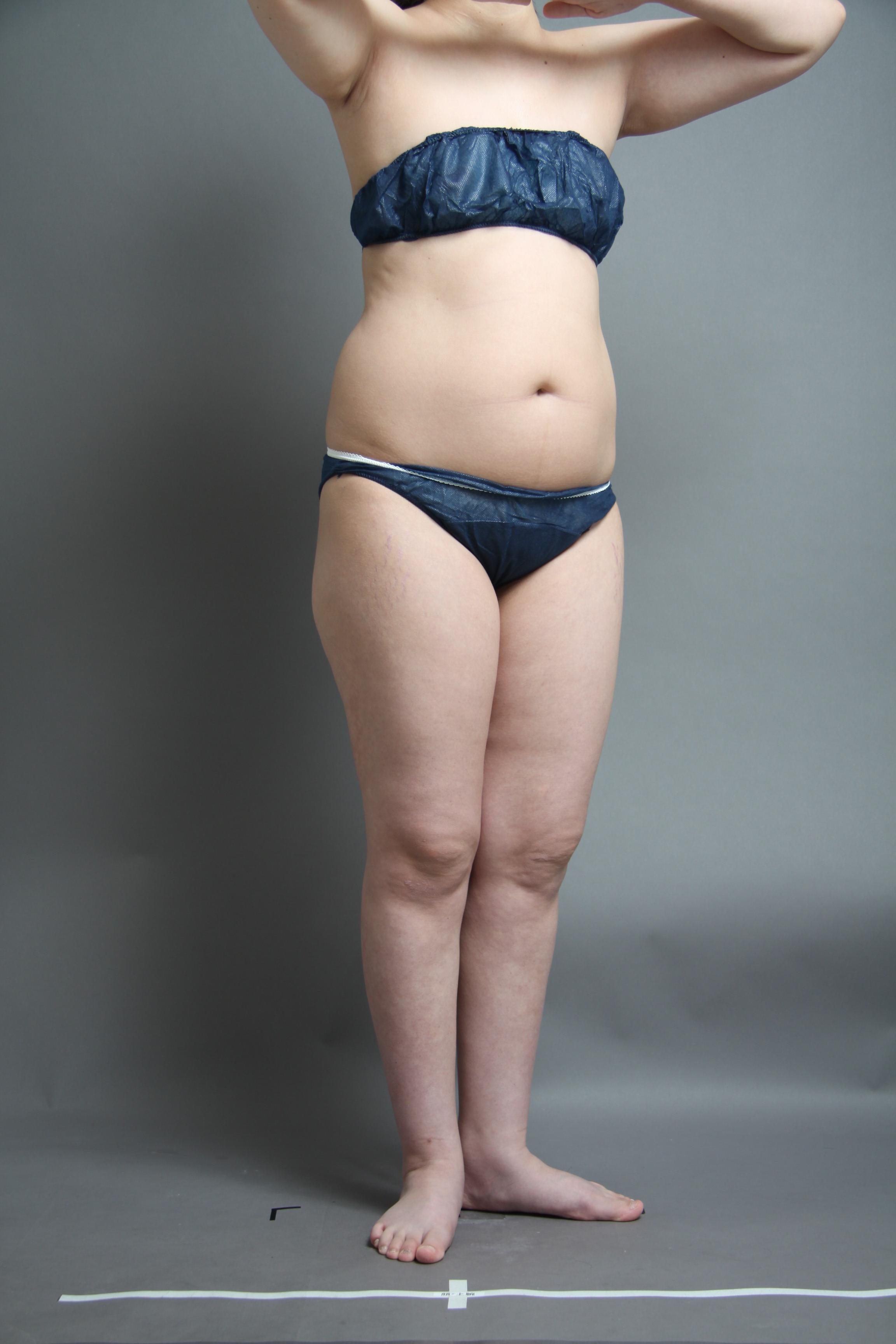 全身の脂肪吸引〜ベイザーリポで人生が変わる?! 〜