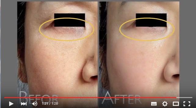 要らない脂肪で若返り:顔に立体感を作り、さらに肌質も改善
