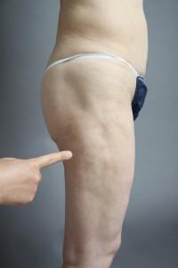 他院脂肪吸引凸凹修正
