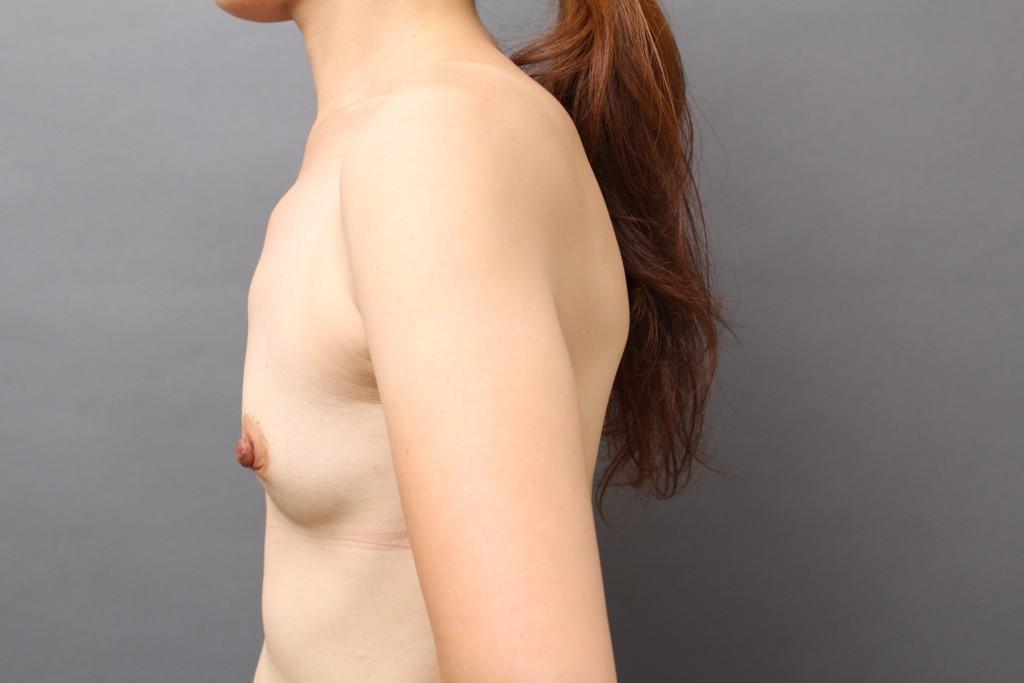 授乳後の豊胸:VASER/CRF豊胸セミナーの様子