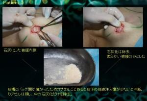 パンパシフィック形成外科学会1日目