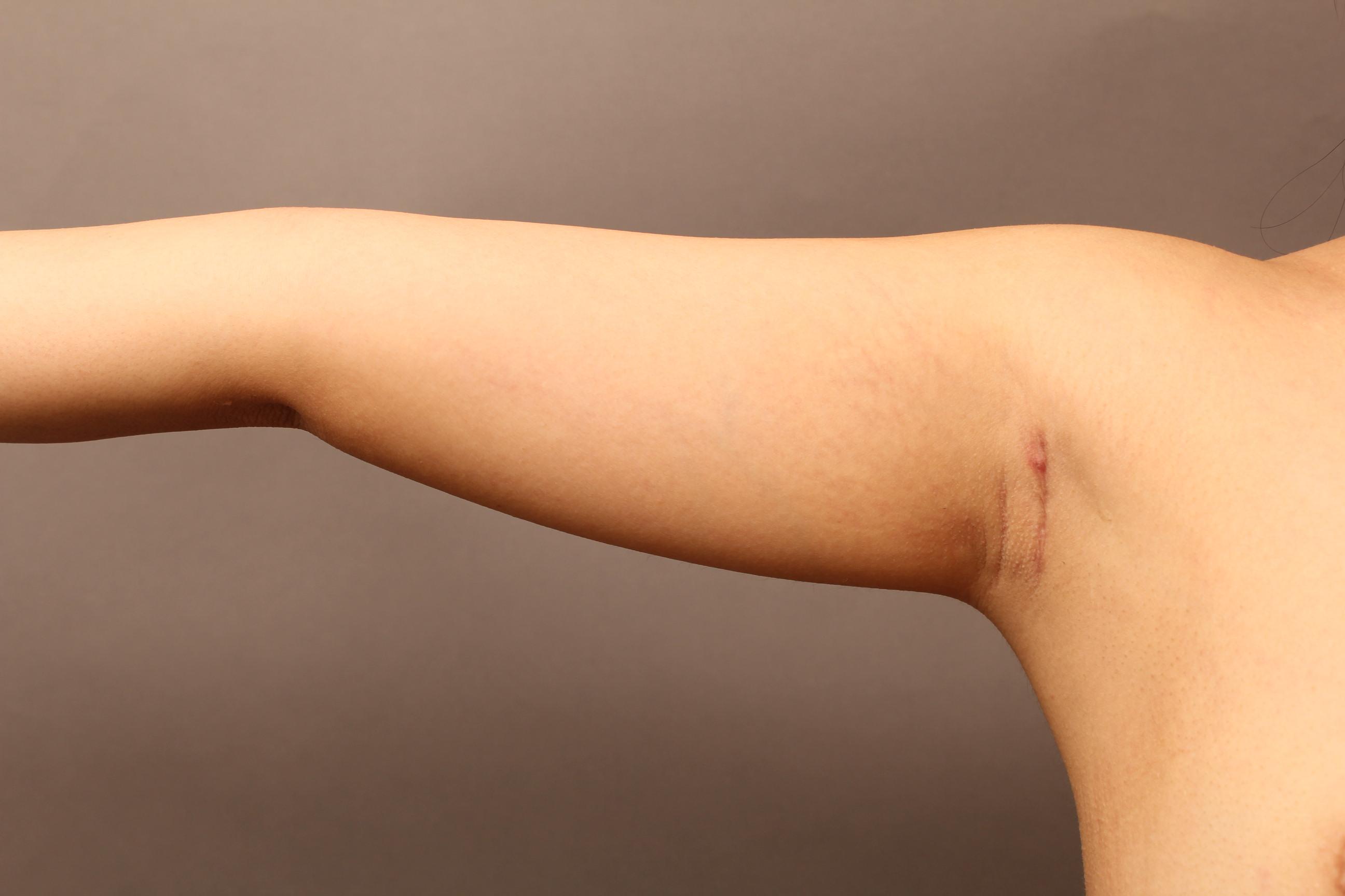 二の腕の脂肪吸引、1ヶ月で確実にほっそり:まだ夏のノースリーブに間に合います
