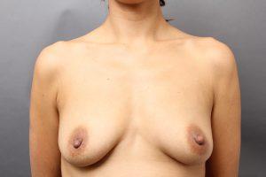 胸サーミ+CRF術後