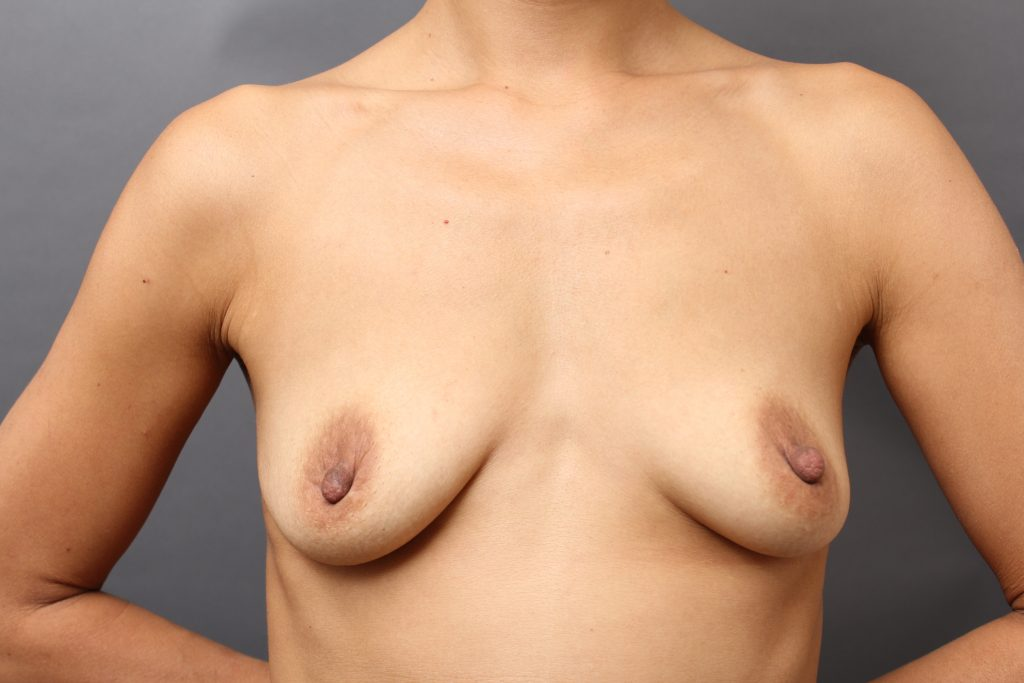 授乳後の胸のしぼみ、垂れを解消:動画