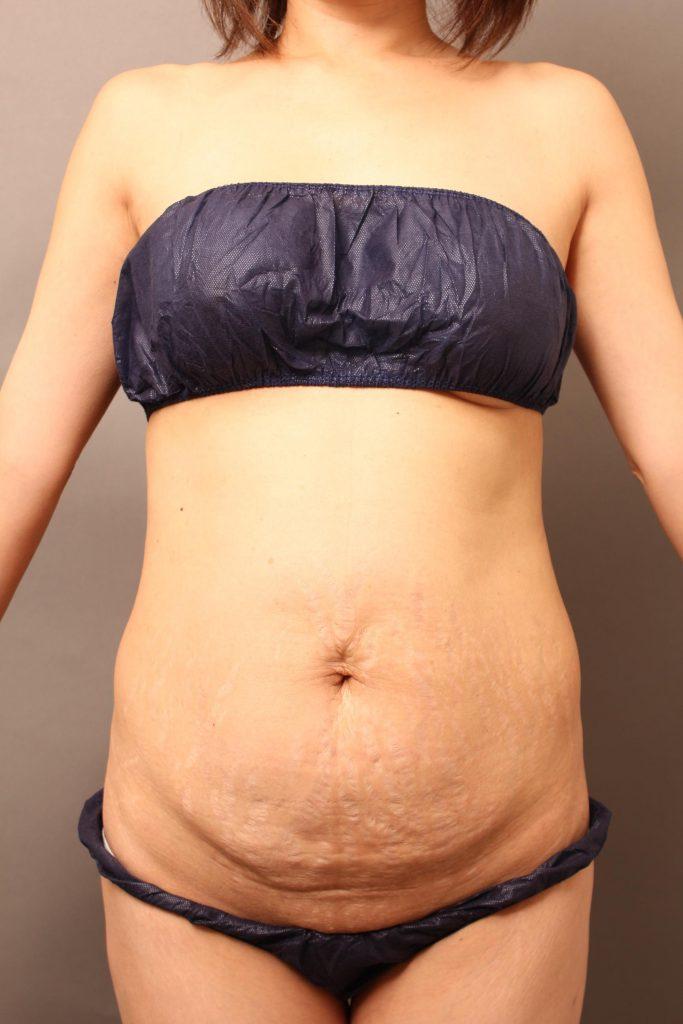 産後のたるんだお腹:タミータック手術で出産前の引き締まったラインに