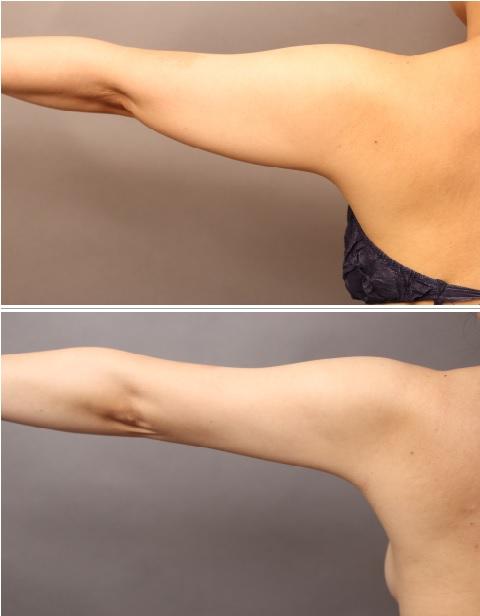 二の腕+肩のベイザー脂肪吸引