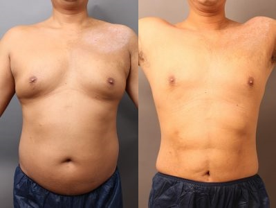 男性脂肪吸引ビフォーアフター(腹部・胸部編)