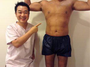 男性 脂肪吸引