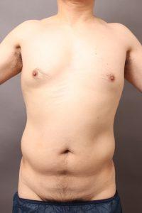 男性 vaser脂肪吸引