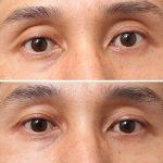 目の上のくぼみ 脂肪注入