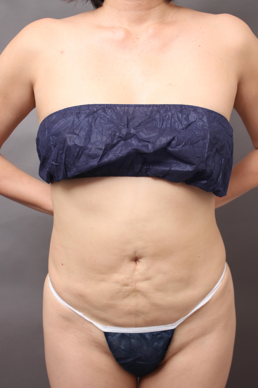 脂肪吸引 他院修正