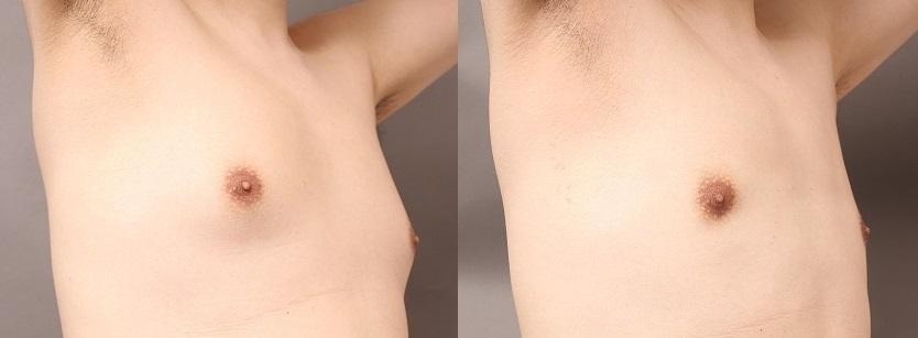 女性化乳房:VASERとサーミタイトで胸を平らに