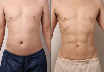 VASER4D:5年経ってもシックスパック 男性の腹部脂肪吸引