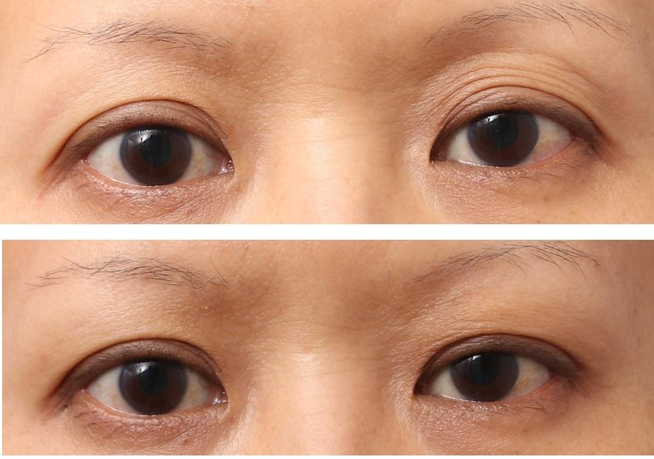 目の上のくぼみ、脂肪注入で解消