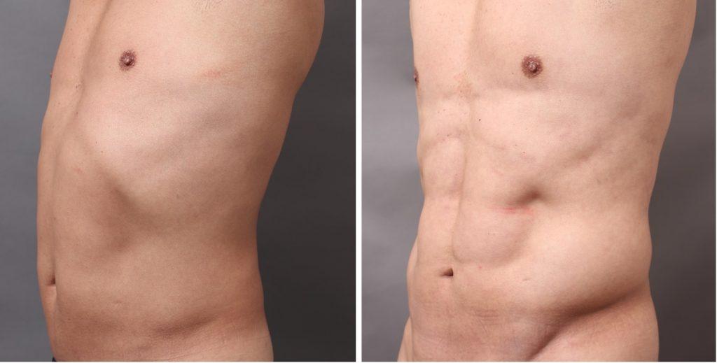 VASER4Dシックスパック+上腕4D 術後半年:驚異の体51歳
