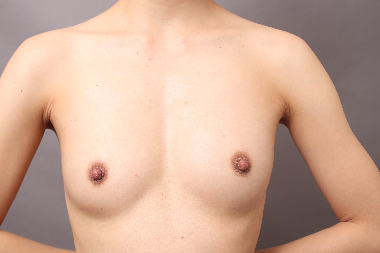 脂肪注入豊胸(CRF)で、自然で理想的なバストとBODYラインを実現