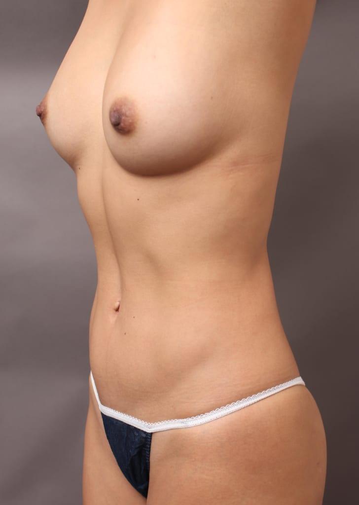 脂肪注入豊胸とベイザー脂肪吸引で、女性の身体はどこまで美しくなるのか?