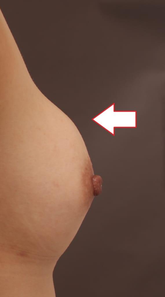 脂肪注入後しこり除去