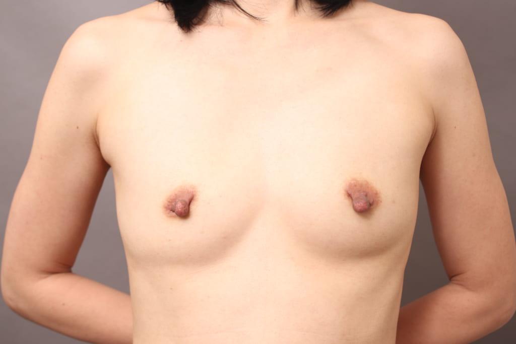 授乳後 乳頭縮小+CRF豊胸