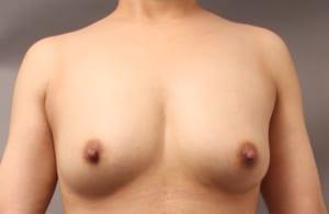 脂肪注入豊胸 術後