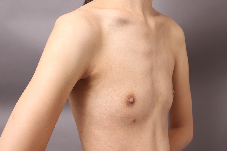AAカップ痩せ型のBRAVA(ブラバ)× コンデンスリッチ豊胸