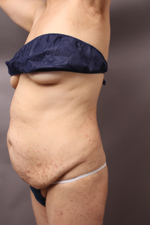 タミータック(皮膚切除による腹部たるみ取り、臍の移動、腹直筋縫縮)の手術