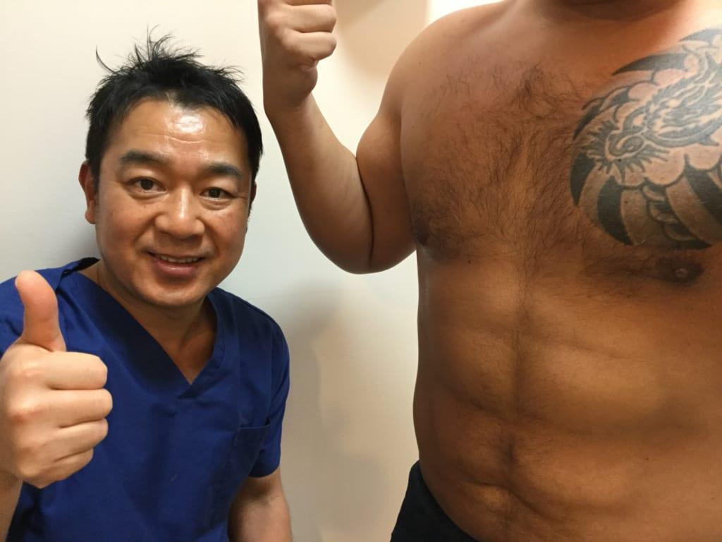 VASER4D 男性シックスパック 腰もスッキリ 術後3か月