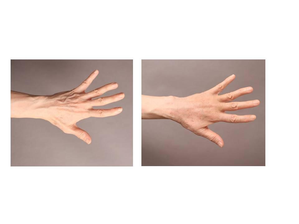 ハンドリバイブ:脂肪による手の若返り