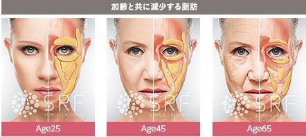 脂肪注入で若い時の立体に戻す:顔のアンチエイジング手術