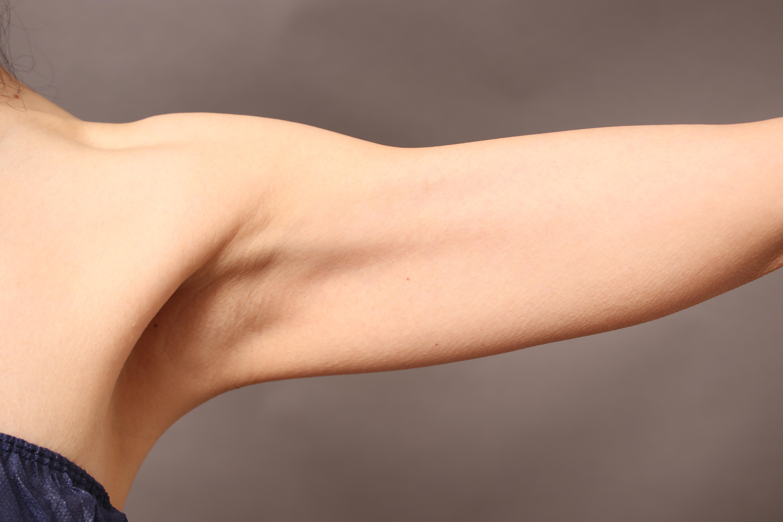 サーミタイト+vaser 二の腕