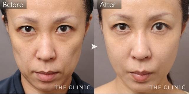 異物を使わず整形美から自然美へ:顔への脂肪注入