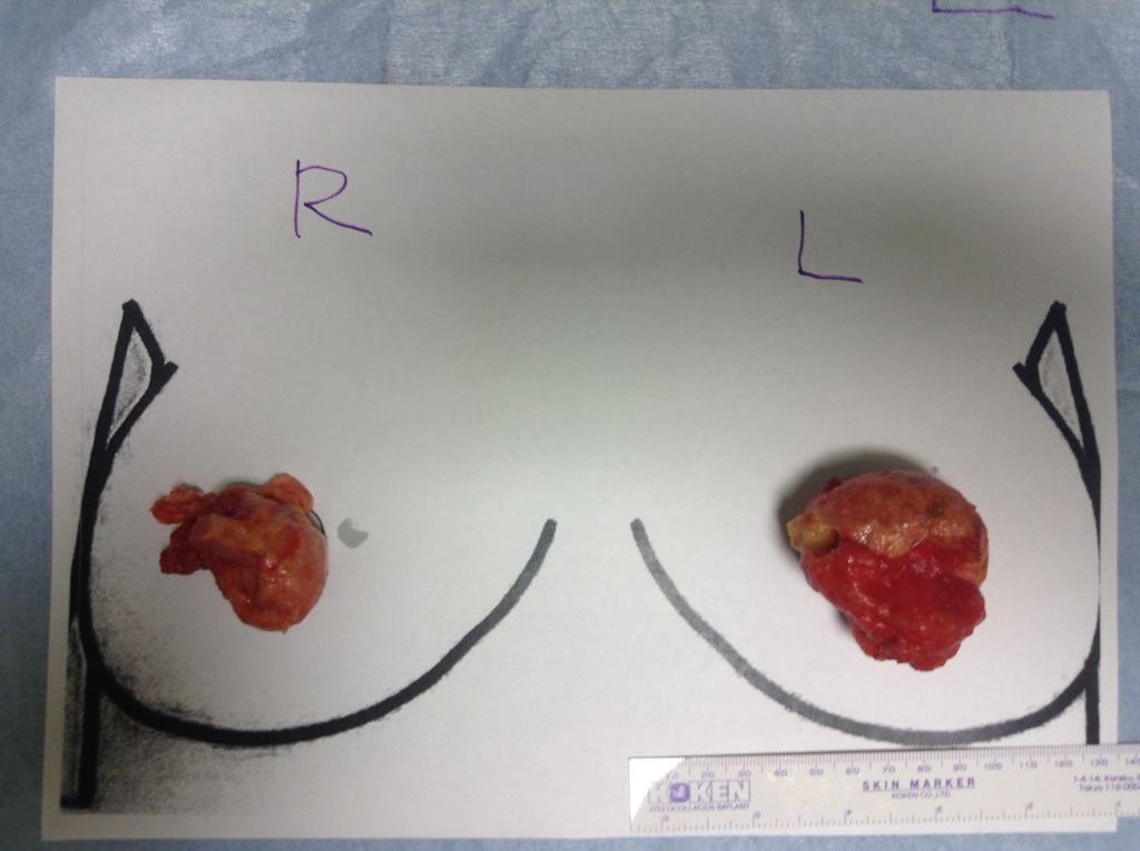他院脂肪注入で大きなしこり。当院で除去後、リベンジCRF豊胸。