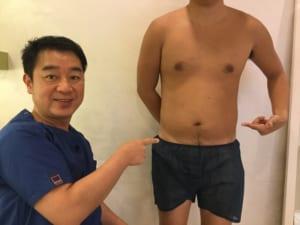 男性の脂肪吸引 シックスパック